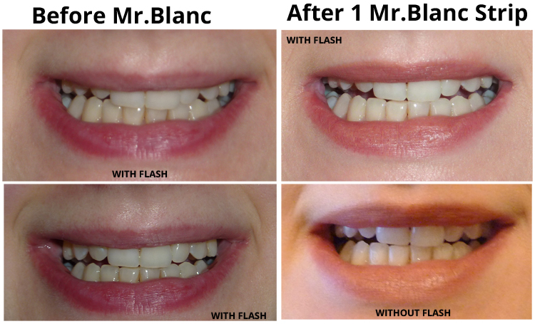 the blanc teeth