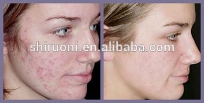 the vert acne