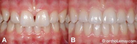 the noir dents