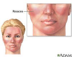 the vert rosacee